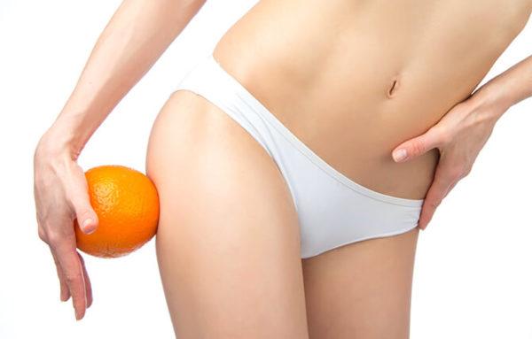 Mesoterapia Cellutrix para acabar con la piel de naranja y la celulitis