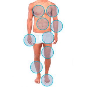 cuerpo masculino con círuclos marcando la depilación láser másculina de cuerpo completo