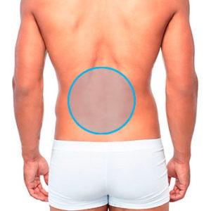 modelo masculino con un círculo en las lumbares para marcar la zona de depilación láser masculina