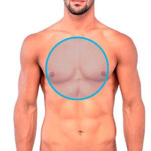 círcuclo azul en el tórax marcando la zona de depilación láser para hombres